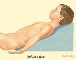 fogyás gyógyítja a refluxot