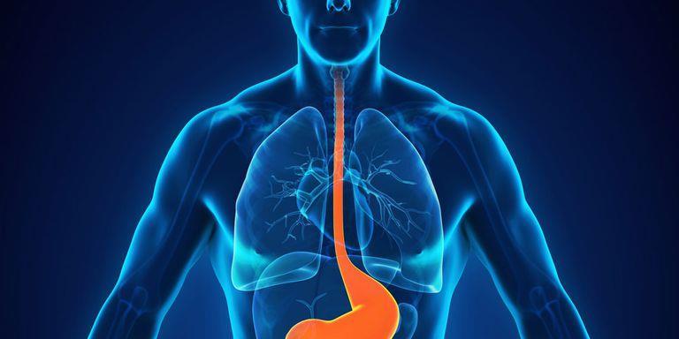 súlycsökkenés refluxot okozva
