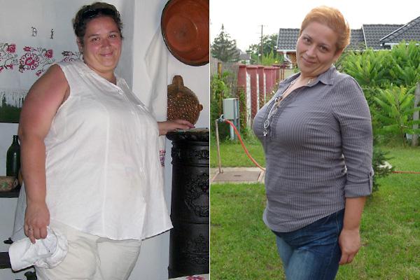 túlsúlyos fogyás tünetei