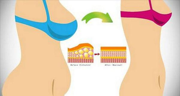 hogyan lehet eltávolítani a toxinokat a zsírsejtekből