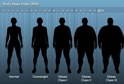 egyéb súlycsökkentő műtétek