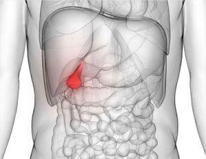 fogyás epe reflux hogyan lehet eltávolítani a zsírheggeket
