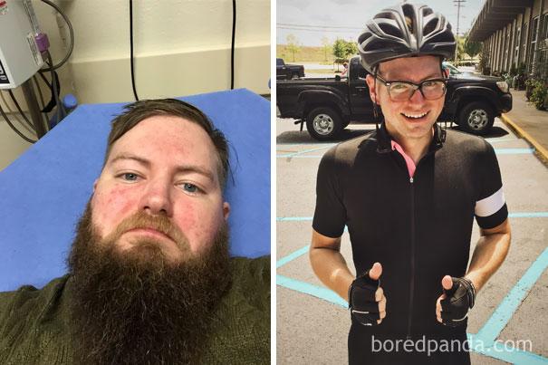Alkohol előtt és után: így változott meg a függők külseje, miután a józanságot választották