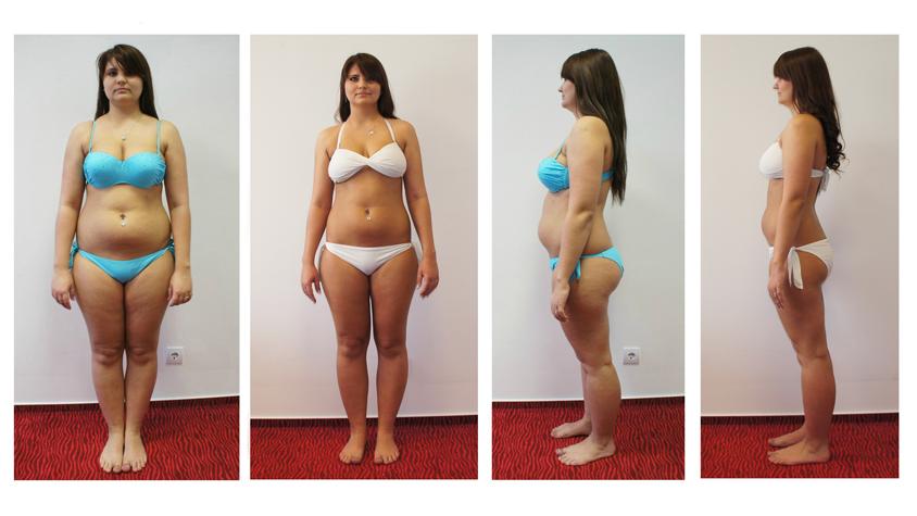 34 éves nő nem tud fogyni