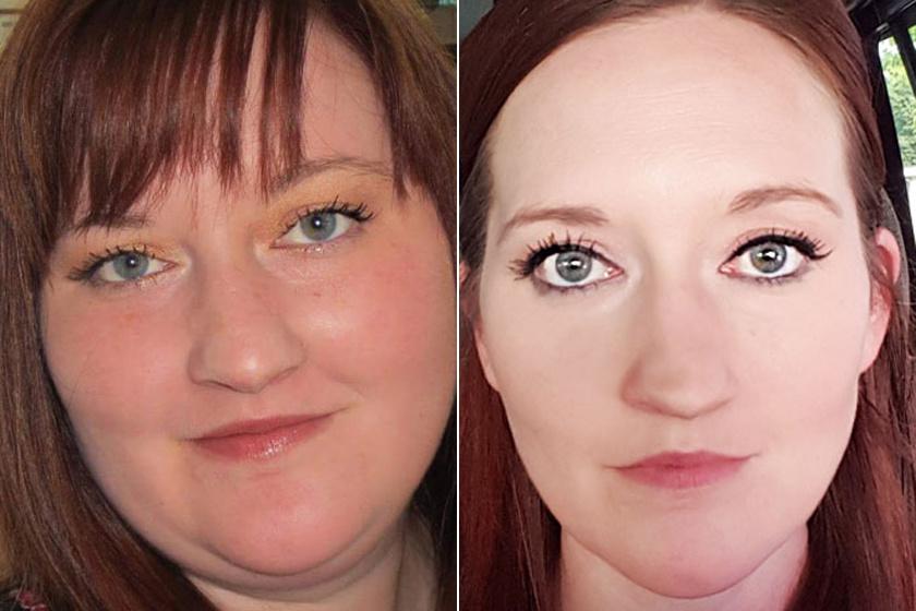 Női arcok fogyás után - Fogyókúra | Femina