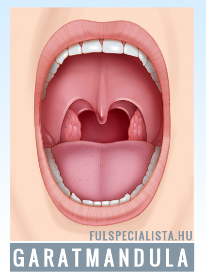 Gócos mandulagyulladás, gócos garatmandula gyulladás